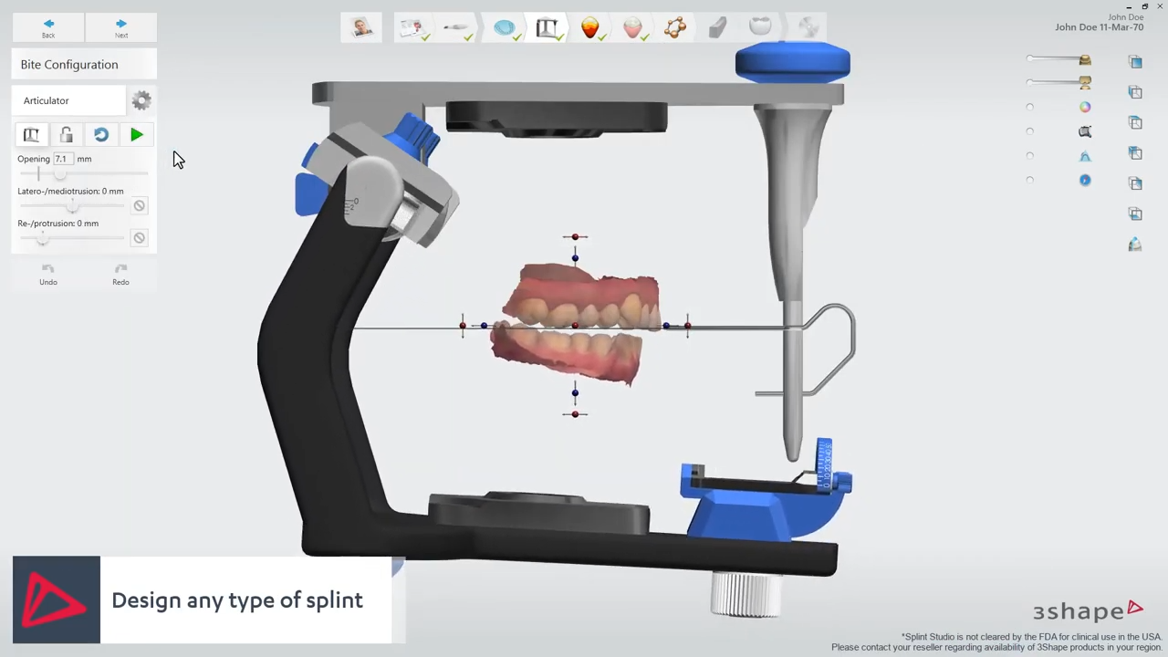 3shape Dental System 2019 Full Version Cracked Newfullsoft